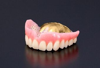 金属床(ゴールド・白金加金)