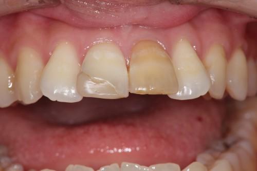 の 神経 抜く 歯