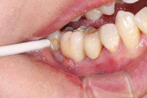 腫れ 方法 ひく の を 歯茎
