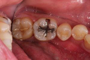 痛い 奥歯