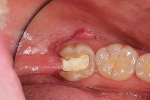 歯茎 が 痛い