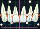 歯の配列・位置